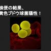 黄色ブドウ球菌による食中毒の特徴、原因と対策